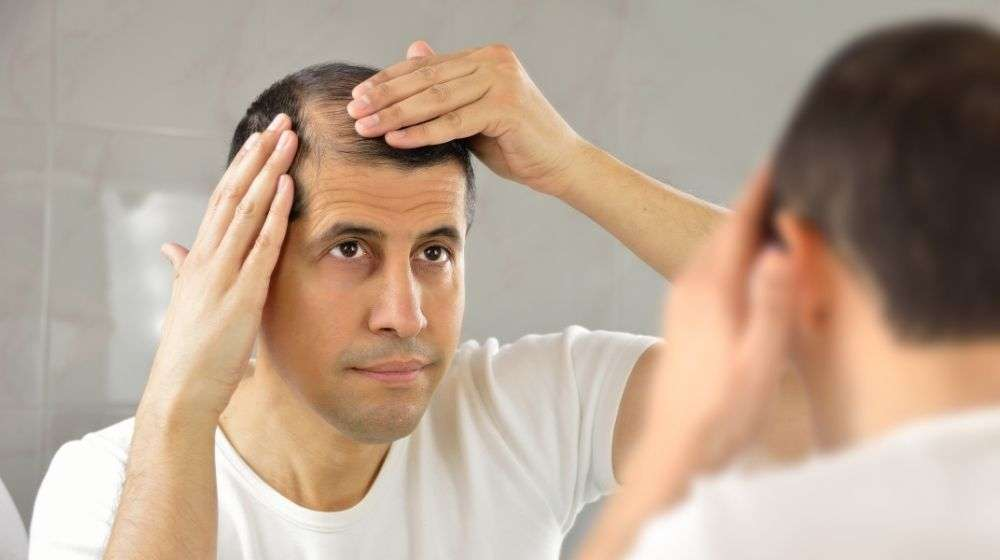 a man havìng hair loss is looking into the mirror | Feature | 5 Ways To Deal With Receding Hairline In Men