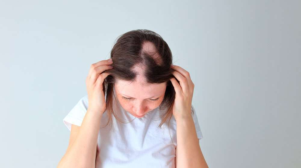 What Is Alopecia Barbae And Why It Happens?