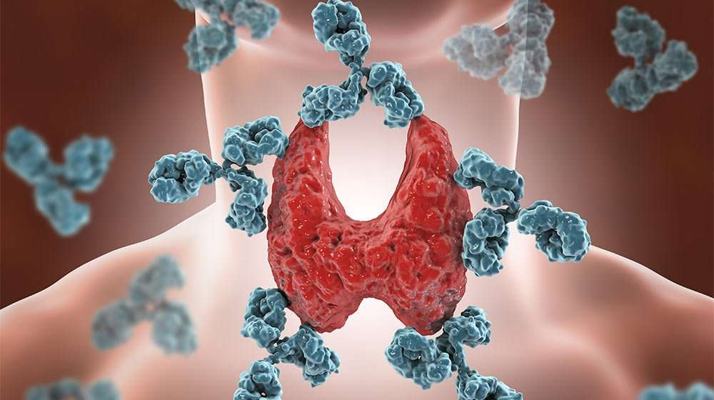 3D Image illustrate Hashimoto's disease - one of 1…eases That Disrupt Your Weight Control | Feature | 10 Autoimmune Diseases That Disrupt Your Weight Control